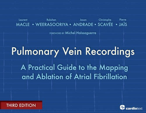 Pulmonary Vein Recordings: A Practical Guide to the Mapping and Ablation of Atrial Fibrillation: ...