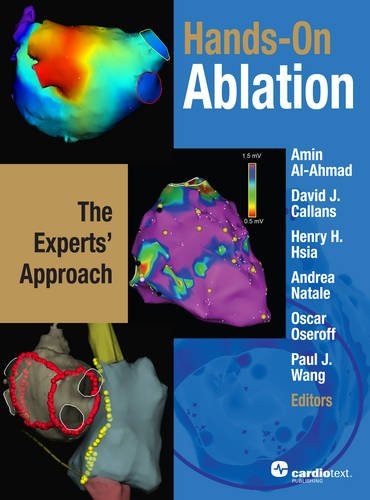 9781935395249: Hands-on Ablation: The Experts' Approach