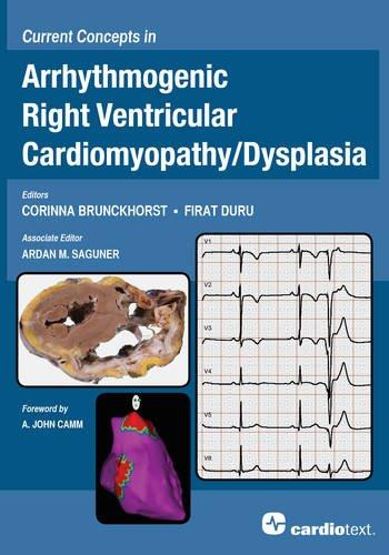 Current Concepts in Arrhythmogenic Right Ventricular Cardiomyopathy / Dysplasia: Brunckhorst, ...