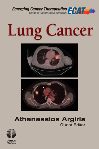 9781936287529: Lung Cancer (Emerging Cancer Therapeutics)