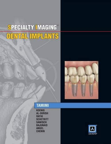 9781937242190: Specialty Imaging: Dental Implants, 1e