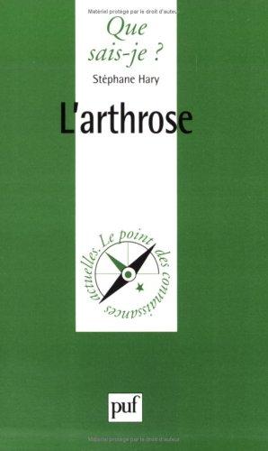9782130494331: L'Arthrose