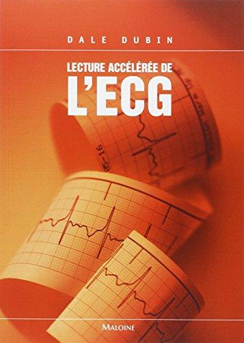 9782224029647: Lecture Accélérée de L'ECG (French Edition)
