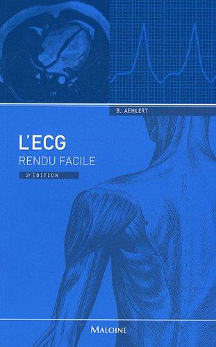 9782224031558: L'ECG rendu facile (French Edition)