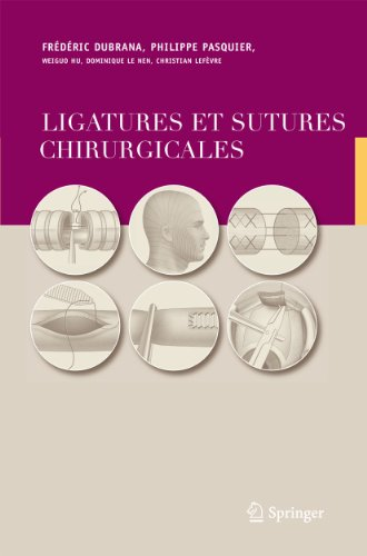 9782287251665: Ligatures et sutures chirurgicales: Techniques chirurgicales (French Edition)