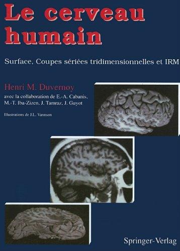 Le cerveau humain: Surface, coupes sériées tridimensionnelles et IRM (French Edition) (2287595635) by Duvernoy, Henri M.