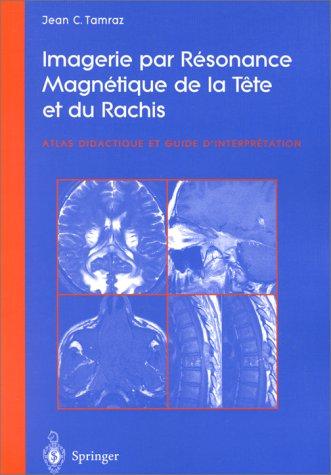 9782287596841: Imagerie par Resonance Magnetique de la Tete et du Rachis (French Edition)