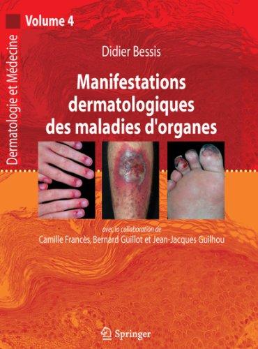 9782287720727: Manifestations dermatologiques des maladies d'organes: Dermatologie et médecine, Vol. 4 (French Edition)