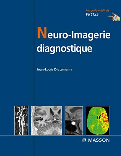 9782294004124: Neuro-imagerie diagnostique