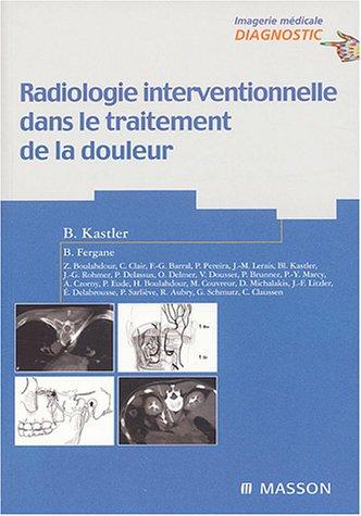 9782294004445: Radiologie interventionnelle dans le traitement de la douleur
