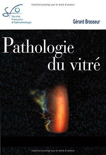 9782294011993: Pathologie du vitré