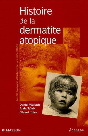 9782294016097: Histoire de la dermatite atopique