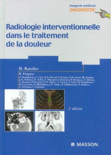 9782294020919: Radiologie interventionnelle dans le traitement de la douleur (French Edition)