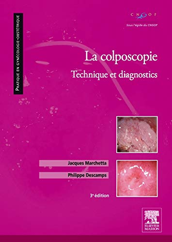 9782294102387: La colposcopie: Technique et diagnostics