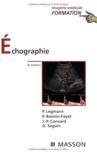 9782294702730: Echographie (French Edition)