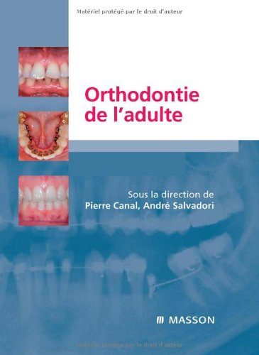 9782294703256: Orthodontie de l'adulte (French Edition)