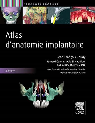 Atlas d'anatomie implantaire: Jean-François Gaudy; Bernard