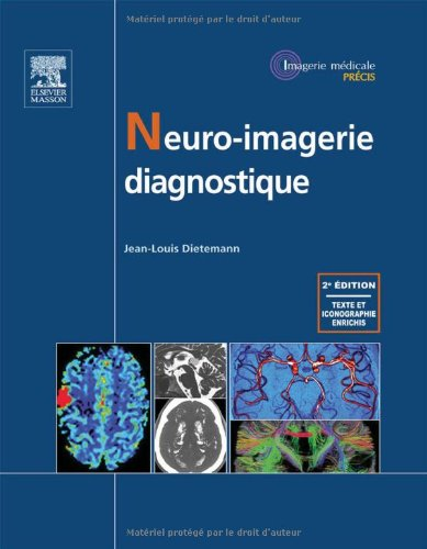 9782294714528: Neuro-imagerie diagnostique