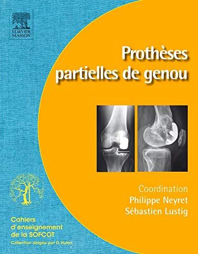 9782294714573: Prothèses partielles du genou (French Edition)