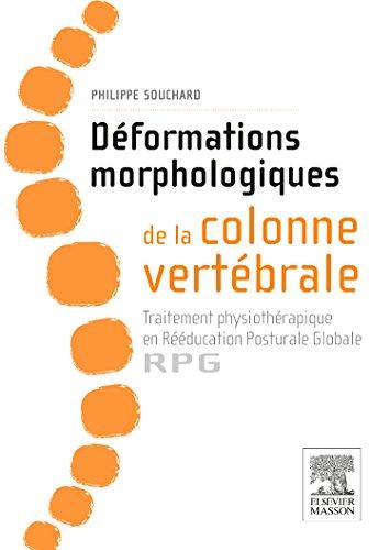 9782294744501: Déformations morphologiques de la colonne vertébrale: Traitement physiothérapique en Rééducation Posturale Globale-RPG