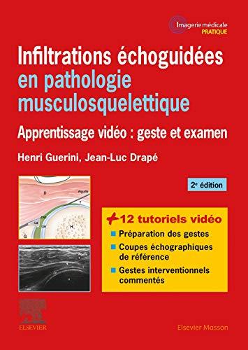 9782294759987: Infiltrations échoguidées en pathologie musculosquelettique: Apprentissage vidéo : geste et examen