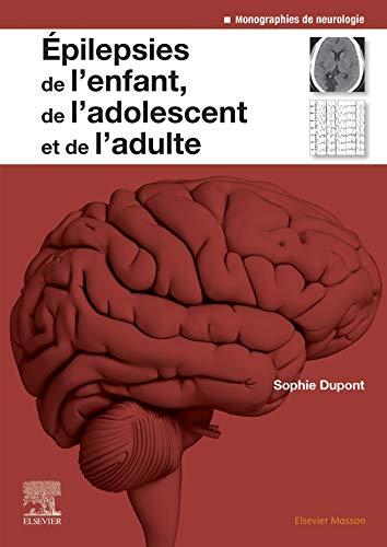 9782294762789: Epilepsies de l'enfant, de l'adolescent et de l'adulte: De la physiopathologie à la prise en charge