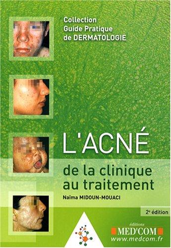 l'acné: de la clinique au traitement (2e édition): Martine Chivot, Na�ma ...