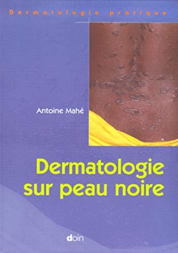 Dermatologie sur peau noire: Antoine Mahe