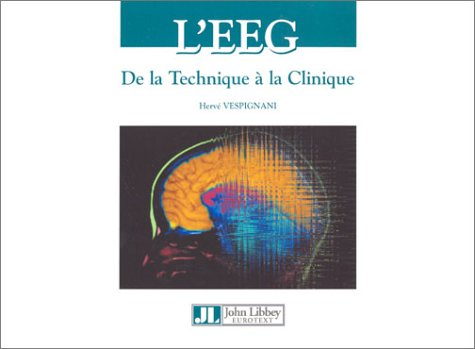 9782742004614: L'EEG : De la technique à la clinique