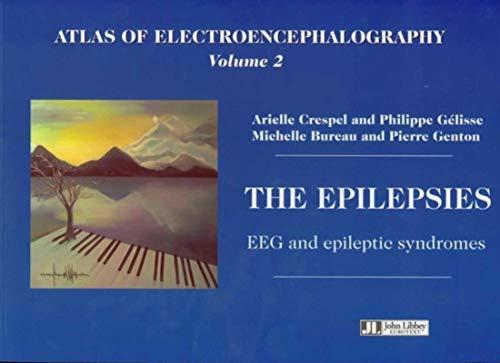 9782742006007: Atlas of Electroencephalography Vol 2. The Epilepsies. EEG and Epileptic Syndromes (v. 2)