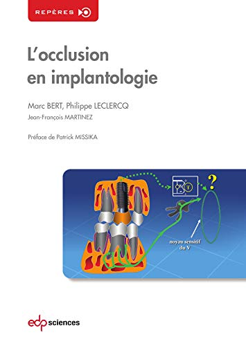Occlusion en Implantologie