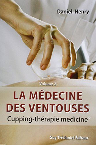 9782813201461: La médecine des ventouses : Tome 2, Cupping - Thérapie medicine (French edition)