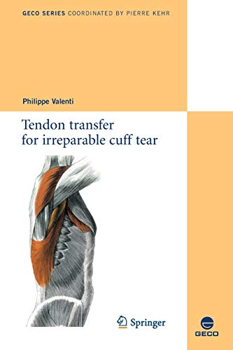9782817800486: Tendon transfer for irreparable cuff tear (Collection GECO)