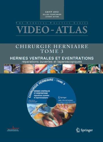 9782817801445: Vidéo-Atlas Chirurgie herniaire: III. Hernies ventrales et éventrations, réparations ouvertes et laparoscopiques (Video-Atlas Chirurgie Herniaire) (French Edition)