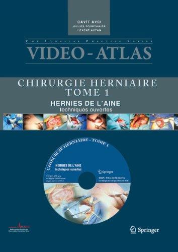 9782817801476: Vidéo atlas Chirurgie herniaire: I. Hernie de l'aine, techniques ouvertes (Video-Atlas Chirurgie Herniaire) (French Edition)