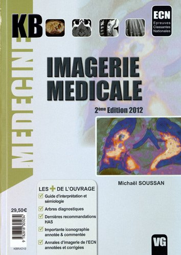 9782818305034: kb imagerie medicale 2eme edition 2012