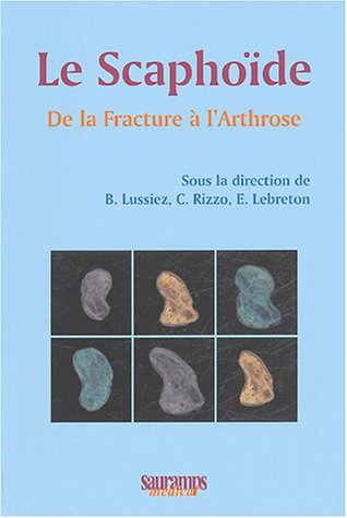 Le scaphoïde (French Edition): Christophe Rizzo