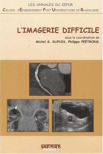 IMAGERIE DIFFICILE -L-: DUPUIS PEETRONS