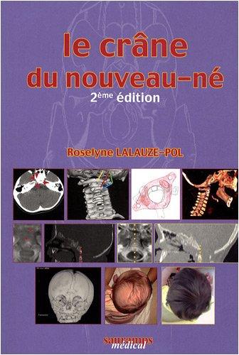 9782840235934: le crâne du nouveau-né (2e édition)