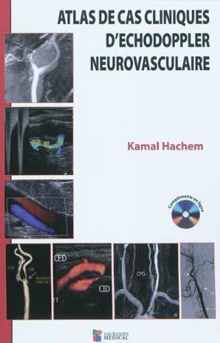 9782840236870: Atlas des cas cliniques d'échodoppler neurovasculaire