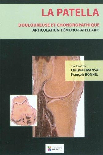 9782840237297: La patella douloureuse et chondropathique : Articulation fémoro-patellaire