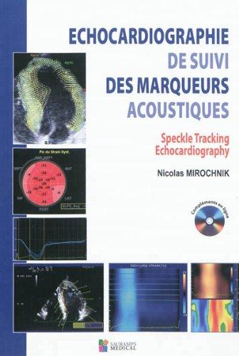 echocardiographie de suivi des marqueurs acoustique. speckle tracking echocardiography: Nicolas ...