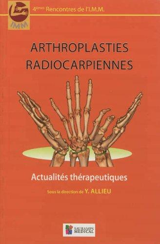 Arthroplasties radiocarpiennes: Yves Allieu