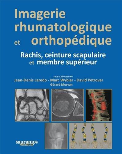 9782840238997: Imagerie rhumatologique et orthopédique : Tome 2 : Rachis, ceinture scapulaire et membre supérieur