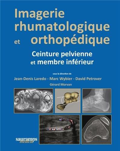 Imagerie rhumatologique et orthopédique : Tome 3 : Ceinture pelvienne et membre infé...
