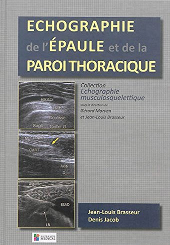 9782840239161: Echographie de l'�paule et de la paroi thoracique