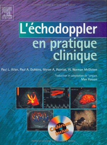 L'échodoppler en pratique clinique (1Cédérom) (Ancien Prix: Max Hassan; Myron