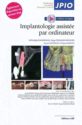 9782843611582: Implantologie assistée par ordinateur