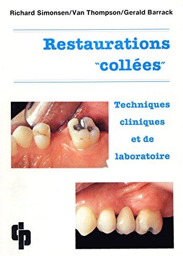 9782902896134: Restaurations collées: Techniques cliniques et de laboratoire
