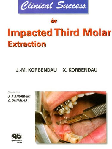 9782912550187: Clinical Success In Impacted Third Molar Extraction